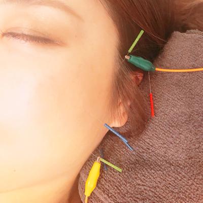 お顔の電気鍼